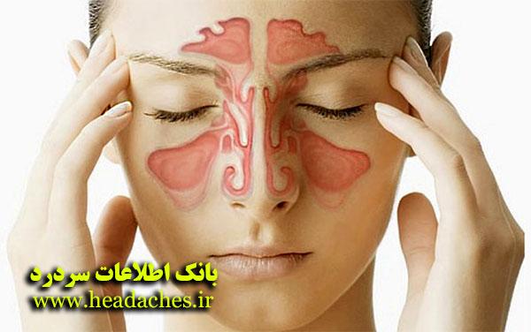 سردرد سینوزیت